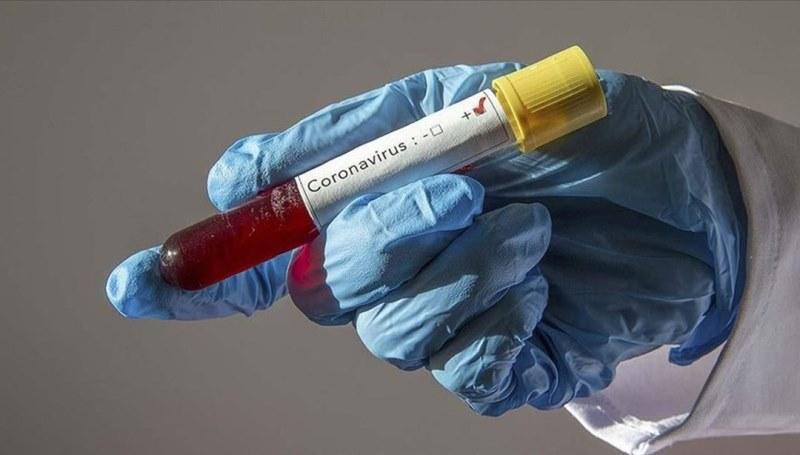 У главврача — Covid-19, но оснований для карантина нет